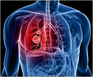 Chronic Stress May Cause Resistance to Lung Cancer Drug