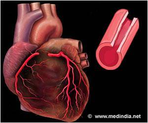 People Adhere To Medication Better After Being Hospitalized For Acute Coronary Syndrome