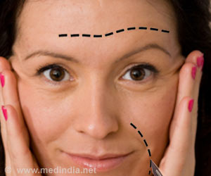 Facial Plastic Surgery can Safely Address the Major Aspects of Aging