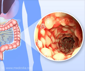 Crohn's Disease Patients Show Imbalance in Intestinal Microbial Population