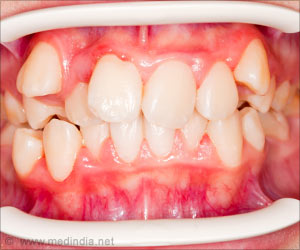 New Vaccine Shows Hope in the Treatment of Gum Disease