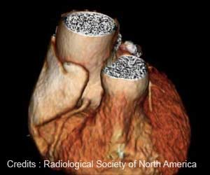 Former Pro Football Players Have Enlarged Aortas