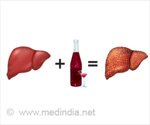 Non-alcoholic Fatty Liver Disease: Risk Factor for Liver Cancer