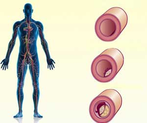 Blood Clots may be Hereditary