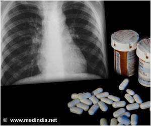 Common Glaucoma Medication may Help Treat Drug-Resistant Tuberculosis