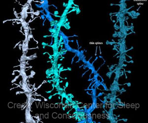 High-Resolution Visual Images Show How the Brain Resets During Sleep
