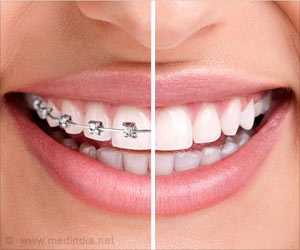 Keeping Bacteria Away from Dental Braces