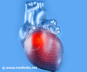 Response to Cardiac Stress Elaborated in New Study