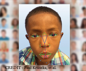 Facial Recognition Software Helps to Diagnose Rare Genetic Disease