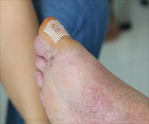 Discovery of Healing Molecule may Reduce Diabetic Limb Amputations