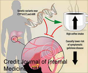 Coffee can Protect Against Gallstone Formation