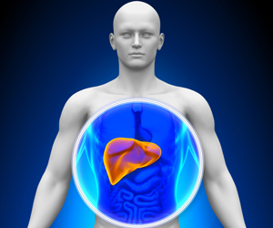 Mystery Behind The Risk Of Liver Disease in Men With Hepatitis B