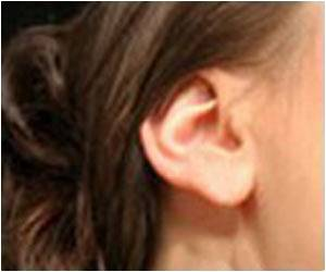 Cause for Tinnitus Identified