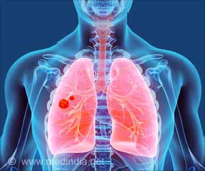Lung Transplant Patients Face a High Lung Cancer Risk