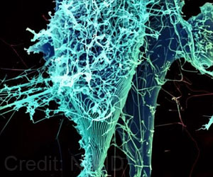 Evidence of Ebola Viral Markers Found in Lung of Recovering Patient