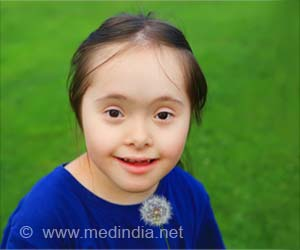 Disappearing Rates of Down Syndrome In Iceland