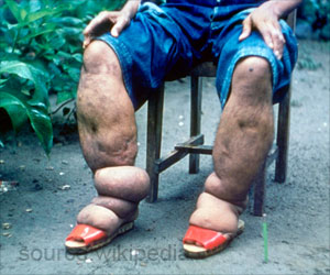 Simple Self-care Package Could Reduce Acute Attacks of Elephantiasis
