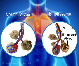 Regular Aspirin Use may Slow Progression of Deadly Lung Disease 'Emphysema'