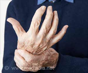 Nitric Oxide Based Gel Benefits Rheumatoid Arthritis Patients