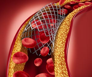 Viagra Coated Stent Reduces Blood Clots, Prevents Narrowing of Coronary Arteries