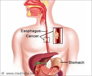 Sub-types Of Esophageal Cancer Could Pave Way For Targeted Treatments