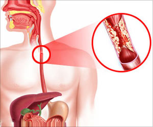 Chennai Doctors Perform Peroral Endoscopic Myotomy to Help Woman Swallow Food