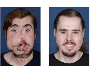 Victim of a Vicious Lye Attack Receives Successful Full Face Transplant
