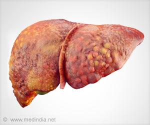 New Canadian Guidelines For Chronic Hepatitis C Virus