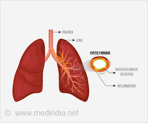 Why Some With Cystic Fibrosis Are Less Prone to Infection?
