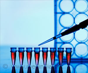 New Test may Help Identify Viral Infections Accurately