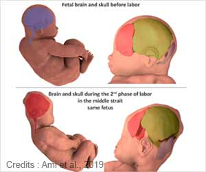 3D MRI Reveals How Infants' Heads Change Shape During Birth
