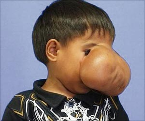 Filipino Boy Gets Back Vision After Reconstruction Of Disfigured Face