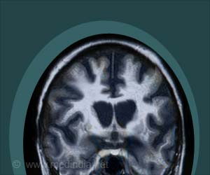 First Targeted Drug Therapy for Huntington's Disease