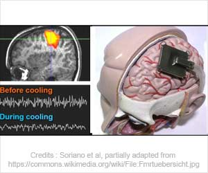 Brain Cooling Therapy Insights Offers Hope for Treating Epilepsy