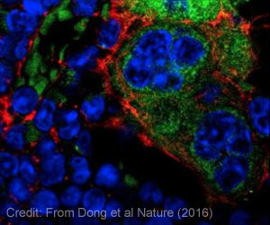 DNA Mutations in Bone Cells Drive Leukemia in Neighboring Stem Cells