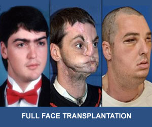 Full Face Transplant Gives New Lease of Life to Virginia Resident