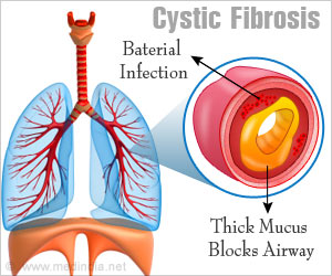 Research Provides New Insight Into Underlying Mechanism Of Cystic Fibrosis & Associated 'Gender Gap'