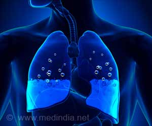 Gene Therapy Could Treat Pulmonary Edema: Here's How