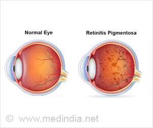Immune System to Slow Degenerative Retinitis Pigmentosa