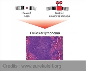 Follicular Lymphoma : Sestrin1 Gene Link Detected