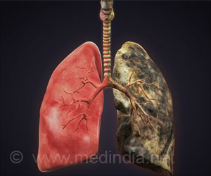 Clues Behind Why Smokers And Non-Smokers Develop COPD