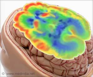 Increased Breakdown of Glucose in Brain Linked to Severity of Alzheimer's Disease