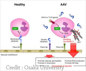 Neutrophil Protein Destruction Linked to Life-Threatening Autoimmune Disease