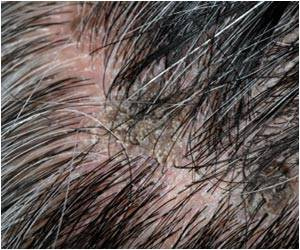 Scientists Discover Growth Factor Responsible for Triggering Hair Follicle Generation During Wound Healing