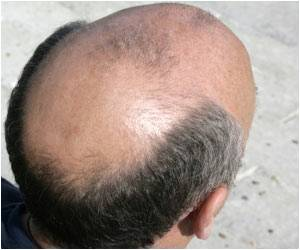 Study Offers Hope for Baldness Cure