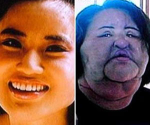 Obsession for a Soft Skin Causes a Korean Woman to Inject Cooking Oil in Her Face