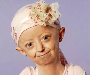 Hayley Okines, Campaigner of a Rare Premature Aging Disease Called Progeria, Dies at 17
