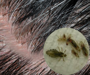 Can't Sleep? Itchy Scalp? Head Lice Might Be The Problem
