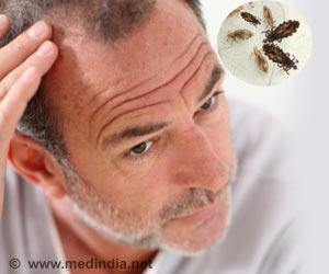 Head Lice Progenitors of Dangerous Body Lice