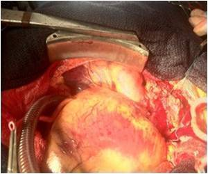 Advanced Aortic Valve Disease Solved With Expandable Prosthesis